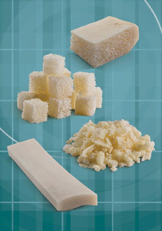 Maxxeus-Bone-particulate-Structural